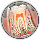Root Canal Treatment Port Orange