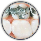 Teeth Whitening Port Orange